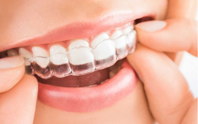 Alinhadores transparentes é na Go odontologia!