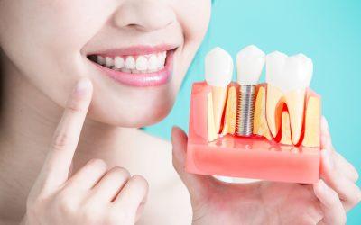 07 vantagens dos implantes dentários